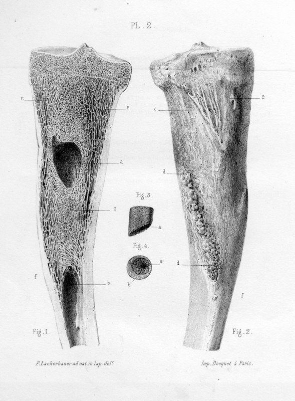 Sur une forme spéciale d'abcès des os ou des abcès douloureux des épiphyses