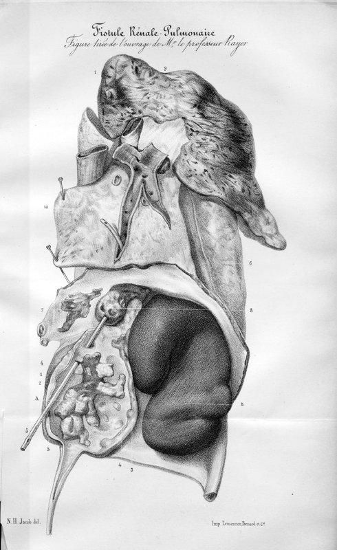 Considérations sur les fistules reno-pulmonaires