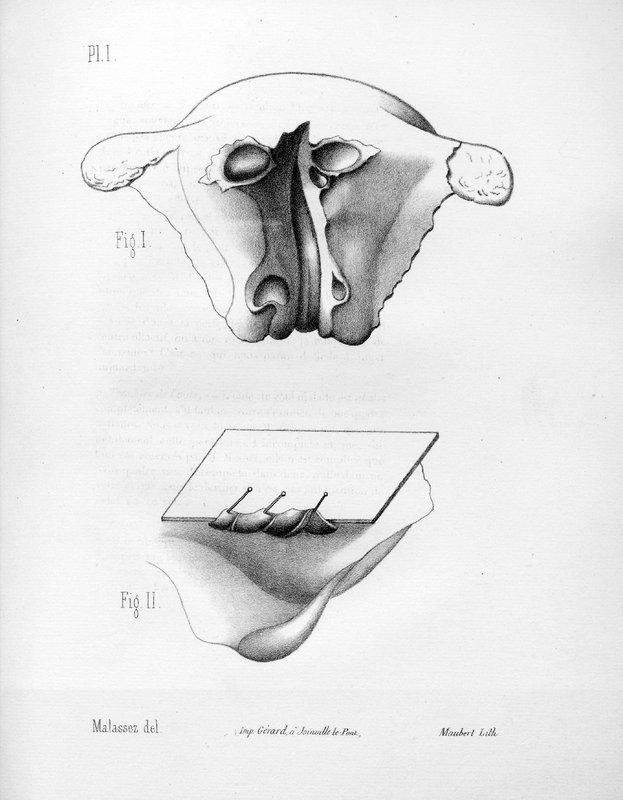 Lymphatiques utérins et lymphangite utérine