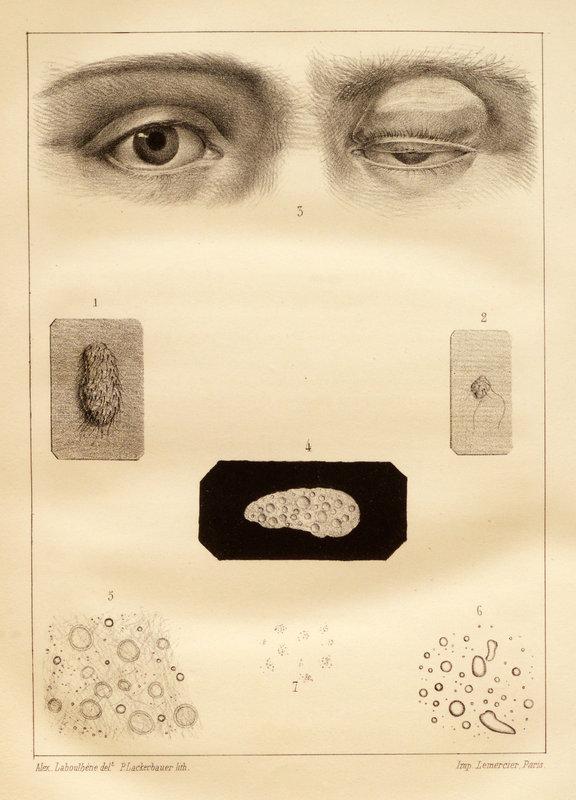 Sur le naevus en général, et sur une modification particulière et non décrite, observée dans un naevus de la paupiére supérieure