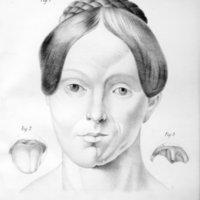 Essai sur l'aplasie lamineuse progressive (atrophie du tissu connectif) celle de la face en particulier (Trophonévrose de Romberg)