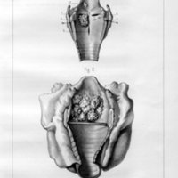 Étude sur les polypes du larynx chez les enfants et en particulier sur les polypres congénitaux