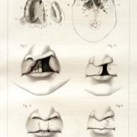 Considérations sur le traitement du bec-de lièvre compliqué