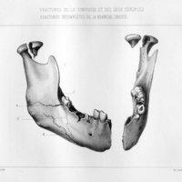 Quelques fractures rares du maxillaire inférieur