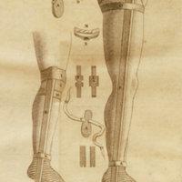 Sur l' Extension continuelle dans les Fractures compliquées et obliques de la jambe, avec la description d'un appareil pour opérer cette extension sans secousses, sans beaucoup de douleur, et à l'aide duquel ou peut réduire et panser seul toutes ces fractures, et transporter sûrement les blesses