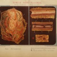 Étude sur les tumeurs fibro-plastiques de la partie inférieure interne de la cuisse et de la région poplitée