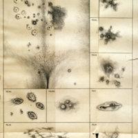 Des dermopathies en des dermonécrosies sacro-coccygiennes