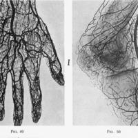 Le Tube de Crookes: Applications Médicales et Chirurgicales des Rayons de Roentgen, de la précision dans les méthodes radiographiques