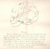 Recherches sur les rapports anatomiques du cerveau avec la voute du crane chez les enfants