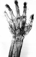 L'Osteo-necrose du semi-lunaire (ou maladie de Kienbock): Étude clinique et conceptions thérapeutiques nouvelles, a propos de 20 cas