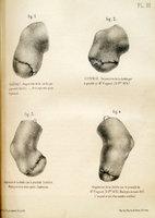 De l'amputation de la jambe par le procédé de M. le Professeur Sédillot: Nouvelles modifications