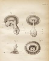 Kystes folliculaires de la matrice des polypes utéro-folliculaires
