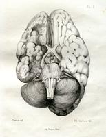 Étude sur l'atrophie cérébrale