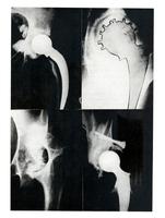 Résultats et analyse de 200 prothèses totales de la hanche.