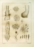 Des végétaux parasites de l'homme