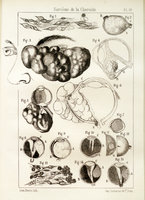 Étude clinique et anatomique sur le sarcome de la choroïde et sur la melanose intra-oculaire