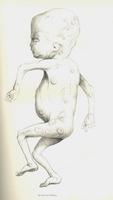 De la variole du foetus
