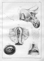 Des fongosités utérines, des kystes de la muqueuse du corps de la matrice, et des polypes fibreaux de l'utérus