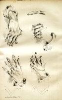 Études pour servir a l'histoire de l'affection décrite sur le noms de goutte asthénique primitive, nodosités des jointures, rhumatisme articulaire chronique (forme primitive)