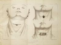 Faits cliniques de laryngotomie