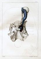 De la communication de la carotide interne et du sinus caverneux (aneurysme arterio-veineux)