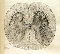 Étude sur le tabes dorsal spasmodique, sclérose primitive des faiscaux latéraux