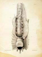 Sur la nature des affections dites tubercules des vertèbres