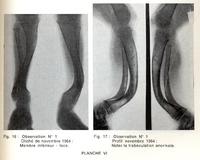 Les Séquelles du Rachitisme Carentiel <br /> Étude clinique et radiologique
