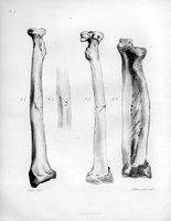 Des fractures du radius et du role physiologique et pathologique du ligament interosseux de l'avant-bras