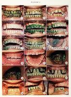 Mise en évidence de la plaque bactérienne dentaire par les colorants