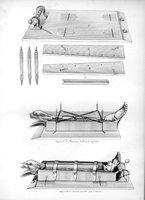 Considérations sur un appareil a fractures de jambe proposé par M. Gaillard, de Poitiers