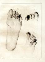 De l'asphyxie locale et de la gangrene symétrique des extrémités