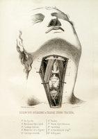 Esquisse d'une anatomie chirurgicale opératoire