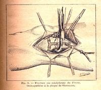 l'Ostéosynthèse dans les fractures fermées et récentes du genou (rotule exceptée)