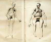 De l'ostéomalacie chez l'homme et les animaux domestiques<br />