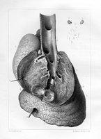Des perforations du poumon, de leur causes, et des phénomènes qui les accompagnent