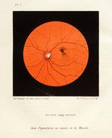 Essais ophthalmoscopiques
