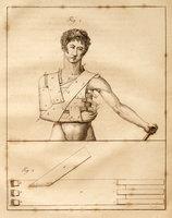 Dissertation sur la Lithototomie, le Tamponnement dans les hémorrhagies utérines, et sur l'usage d'un Bandage nouveau dans la Fracture de la Clavicule