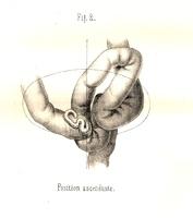 De la situation de l'S iliaque chez le nouveau-né dans ses rapports avec l'établissement d'un anus artificiel