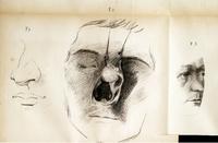 Des polypes nasaux et naso-pharyngiens, et de leur traitement par un nouveau procédé opératoire