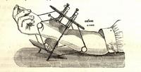 Quelques considérations sur l'emploi de la compression mécanique comme moyen hémostatique