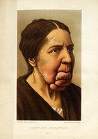 Du leontiasis syphilitique, études sur quelques cas de syphilides hypertrophiques diffuses de la face en particulier