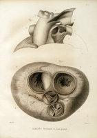 Étude clinique et anatomo-pathologique sur la persistance du canal artériel