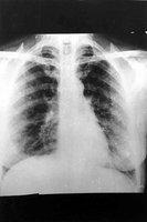 Le poumon rhumatoide, revue generale et discussion du concept (A propos d'un cas)