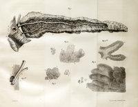 Étude historique et critique sur les fonctions et les maladies du pancréas