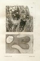 Définition et classification de l'épithéliome pavimenteux (Cancroïde)