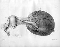 Étude sur les kystes de l'ovaire et l'ovariotomie