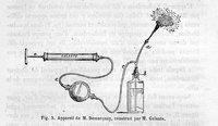 De l'anesthésie locale par la pulvérisation de léther et description d'un nouveau pulvérisateur par le gaz acide carbonique