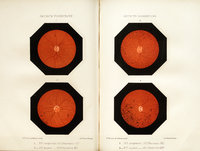 De la rétinite pigmentaire: étude clinique avec quinze observations nouvelles et quatre figures en chromo-lithographie