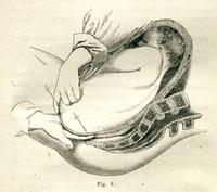 De la conduite a tenir dans la présentation de l'extrémité pelvienne décomplétée, mode des fesses, c'est-a-dire avec relèvement des membres inférieurs sur le plan antérieur du foetus